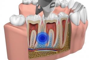 Dental Hi Tec QuickSleeper 5